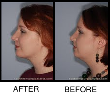 Chin Augmentations on the Rise in Chattanooga