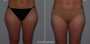 Cosmetic Surgery Center Reports: Skinny Jeans are in, Muffin Tops are out