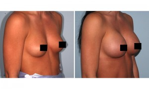Limited Time Breast Augmentation Discount at Chattanooga Cosmetic Surgery Center