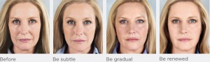 Sculptra, a Longer Lasting Wrinkle Treatment in Chattanooga