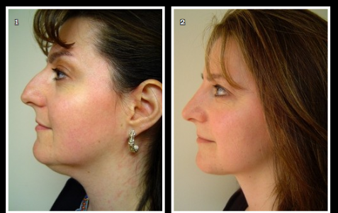 Las Vegas Plastic Surgeon Unveils Potential Results Pre-Nose Reshaping