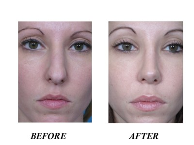 Dr. Man, M.D. Offers Cosmetic Rhinoplasty Services in Boca Raton
