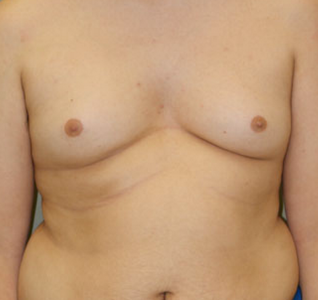 Drug Induced Male Breast Development