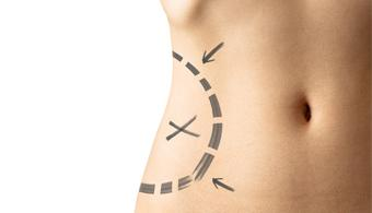Advanced Body Shaping Technology VASERlipo® Now Offered by Smith Plastic Surgery