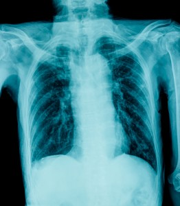 Flail Chest Injuries: Acute Then Chronic Respiratory Impairment