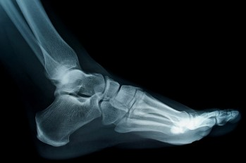 Lifetime Issues: Midfoot Fracture-Dislocations and Metatarsal Fractures