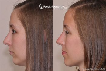Dentist Offers Small Chin Remedy Without Jaw Surgery