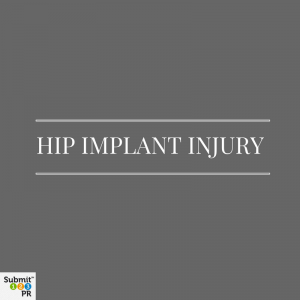 Zimmer Kinectiv Hip Implant Trial Ends In $2 Mil. Verdict For Injured Plaintiff