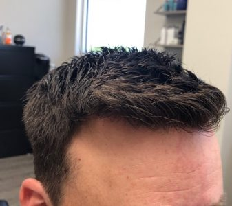 The Demographics of Men Having Non Surgical Hair Replacement are Changing