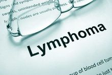 What you should know about lymphoma misdiagnosis